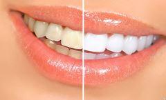 <b>НОВИНКА!!!</b> Новая методика бережного отбеливания зубов.